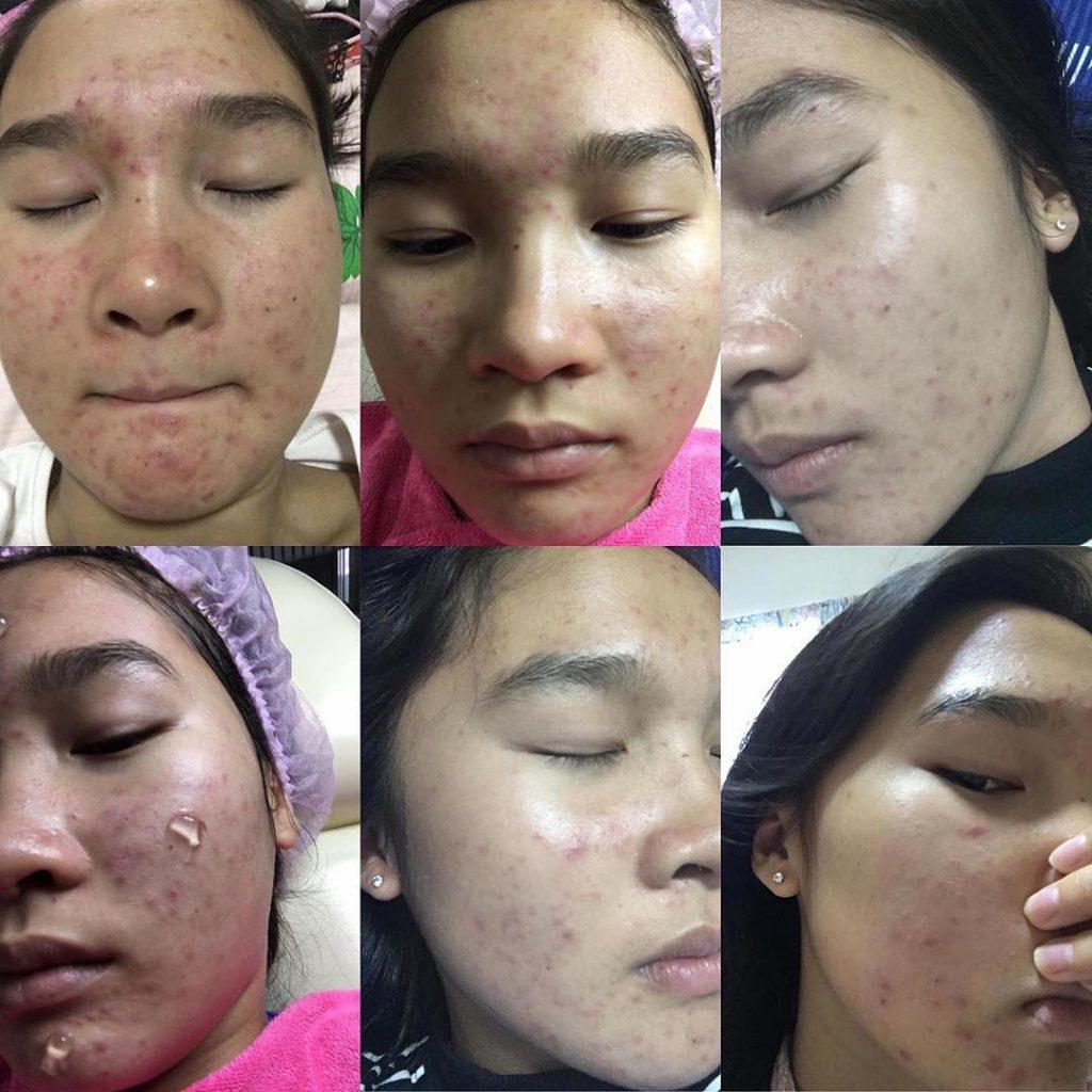 เจลซ่อมผิว skin repair gel สกินรีแพร์เจล Erika - ขายเครื่องสำอาง ของแท้